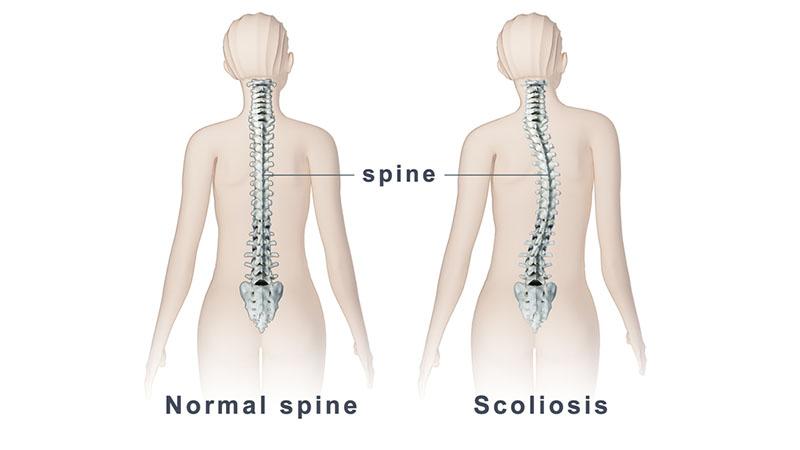 Scoliosis Pada Anak-Anak | Adolescent Idiopathic Scoliosis