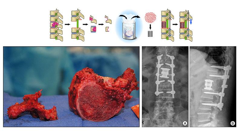 Total Enbloc Spondylectomy | Operation to  Eradicate Spine Tumor