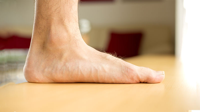 Flat Foot | Kapan Perlu Periksa Ke Dokter