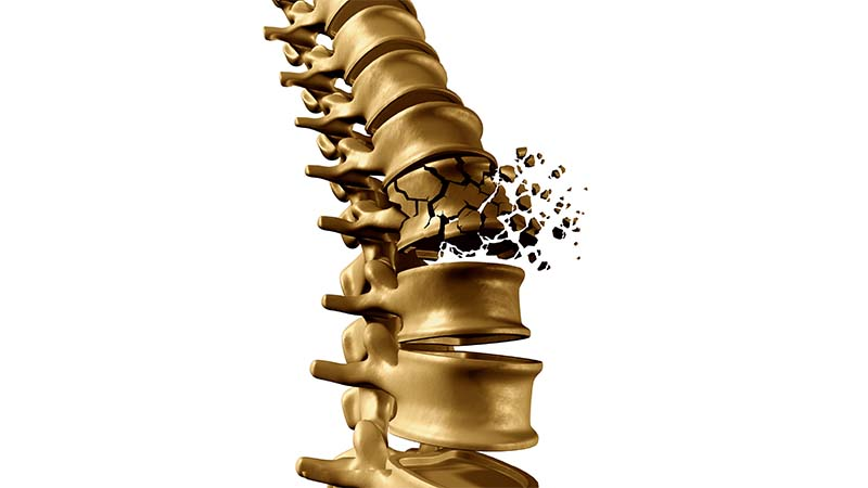 Osteoporotic Spine Fracture