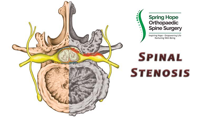 Spinal Stenosis | Narrowing of the Spinal Canal