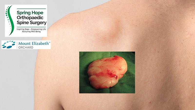 Tumor Jinak Lipoma - Apakah Perlu Dioperasi?