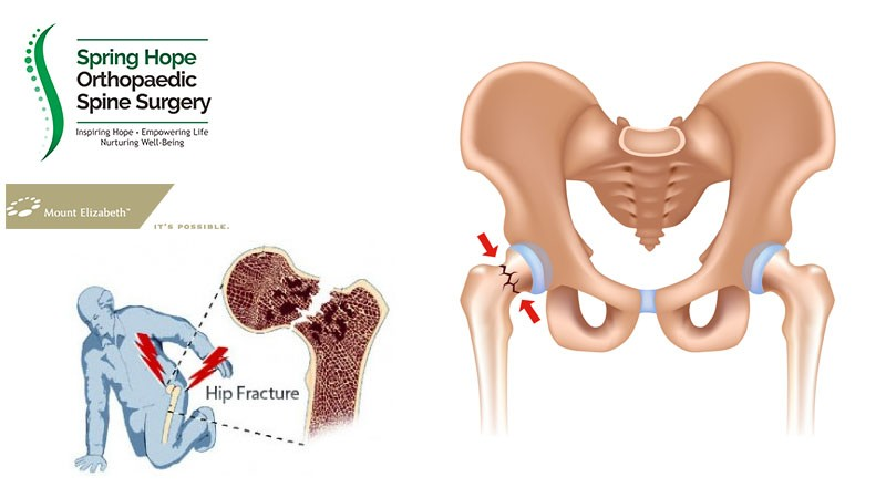 Hip Fracture In Elderly Orthopaedic Spine Surgery Singapore