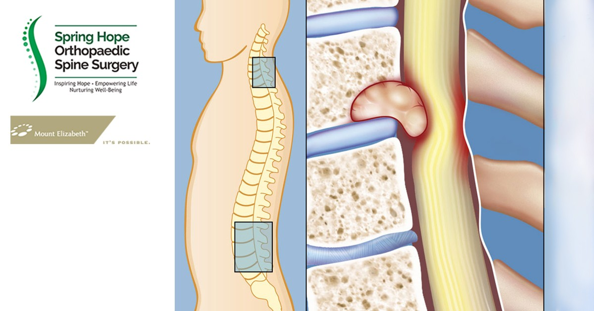 Early Surgery in Spinal Cord Compression from Spine Tumor Gives in Better Outcome